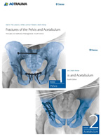 Fractures of the Pelvis and Acetabulum: Principles and Methods of Management, 4th